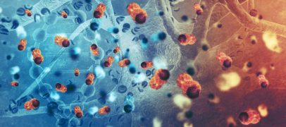 AI Detects Cancer Faster than Humans