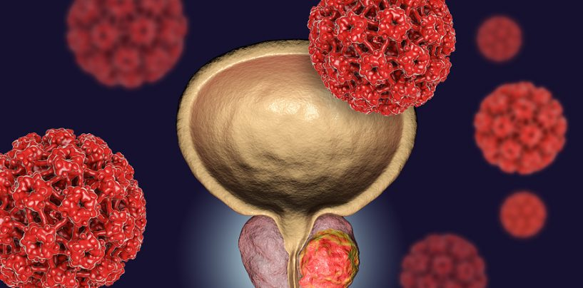How AI is Helping to Detect Prostate Cancer