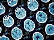 Advances of AI in Digital Pathology