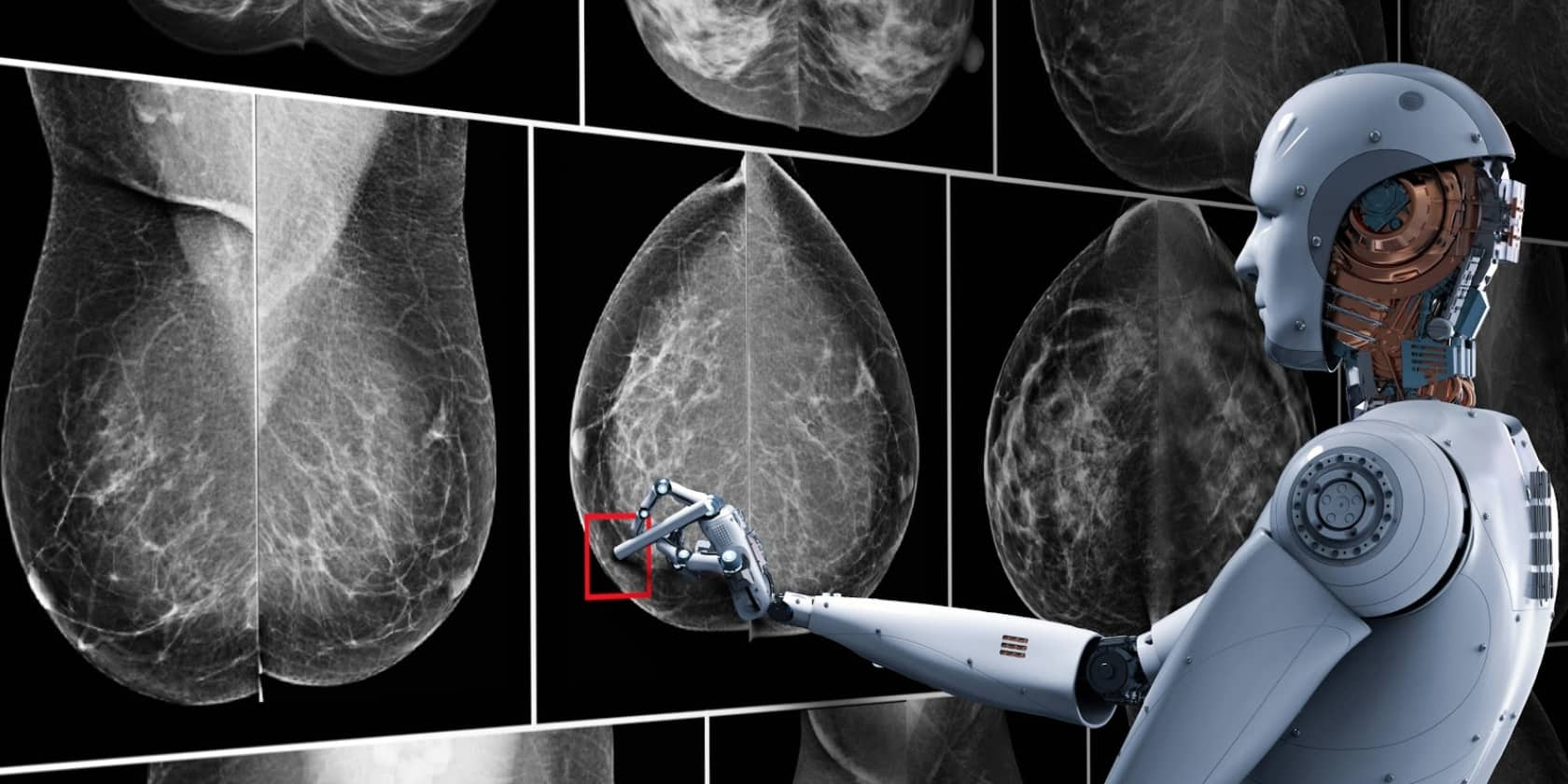 Why Most Women Reject AI to Interpret their Mammograms